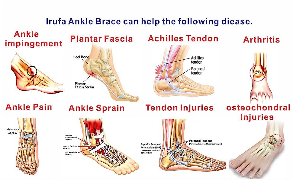 Arthritis.Ankle,impingement,Achilles,Tendon,Plantar,Fascia,injury,sprain,pain,osteochondral