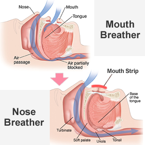 Mouth Breather vs. Nose Breather
