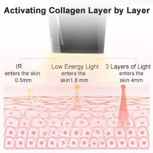 laser hair removal for women hey silky skin hair removal laser heysilkyskin hair removal laser