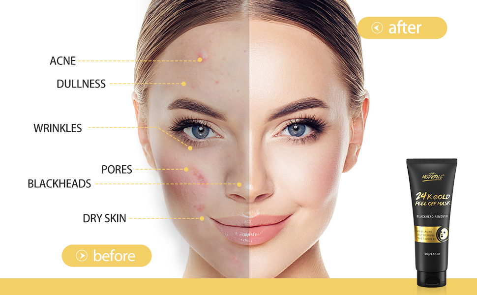Healthy Skin Has a Perfect Oil and Water Balance