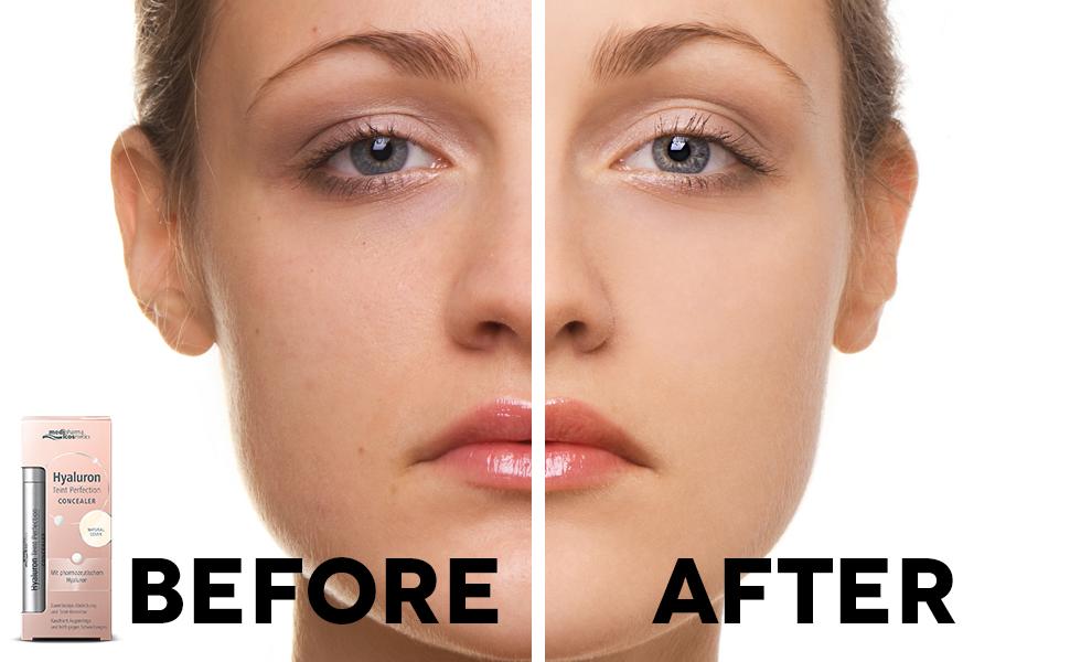 Clinical strength anti-aging formula natural moisturizer plump fine lines vegan paraben cruelty-free