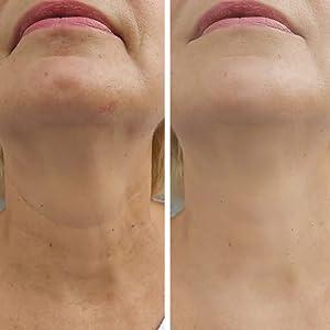 Caviar Face Cream - Hydrating, Tightening, Vitamin-Rich Facial Moisturizer for Women amp; Men