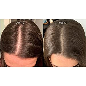 Hair loss growth regrowth dht blocker block thin thinning stimulate women men bald balding