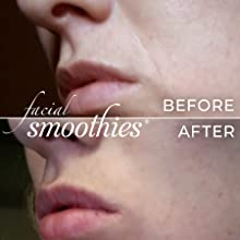 Lip mouth smile naso-labial fold cheek Anti wrinkle remover product line facial smoothies face tape
