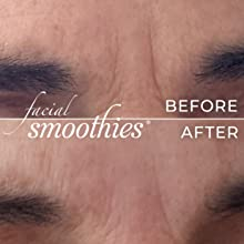 remove between brows wrinkles cleanser wash anti aging mothers women without men botox injections