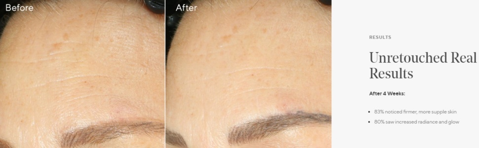 before after murad