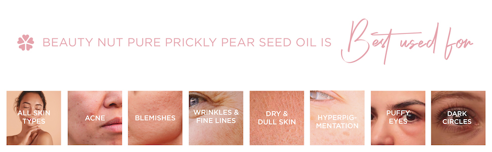 beauty nut prickly pear seed oil anti-aging wrinkle treatment