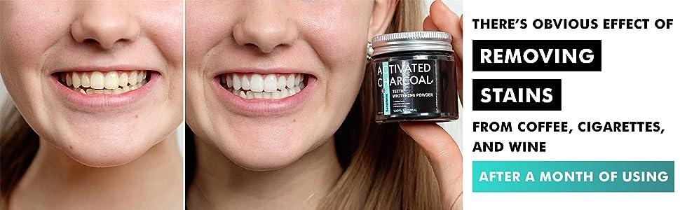 Coconut Teeth Whitener