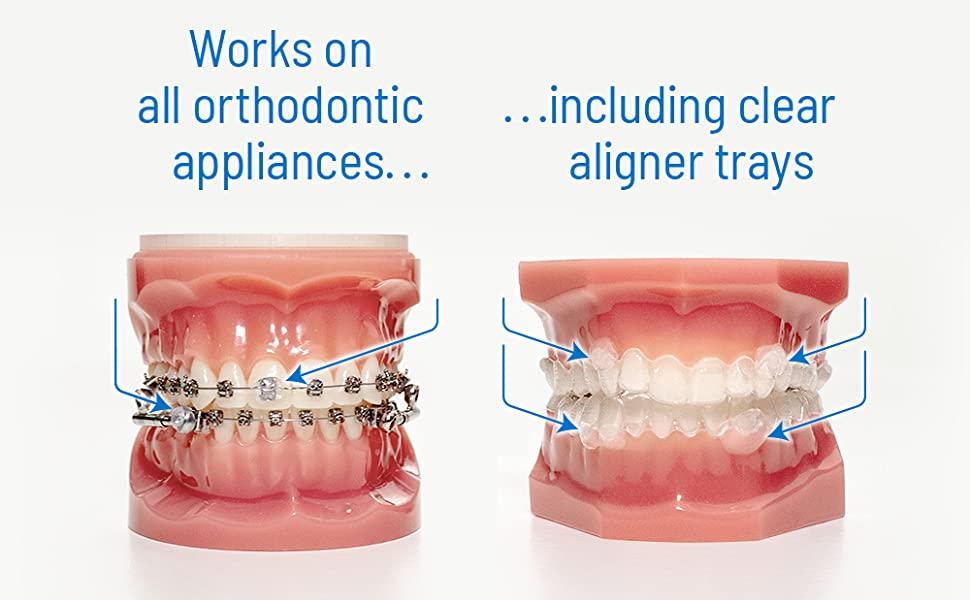 OrthoDots CLEAR vs. Traditional Dental Wax