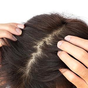 Prevent DHT and Alopecia
