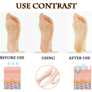 SPN-BFCE Crack Silicone Foot Protector