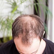 Capill, Streuhaar, Schütthaar, Haarausfall, geheimratsecken, lichtes haar, kahle stellen,