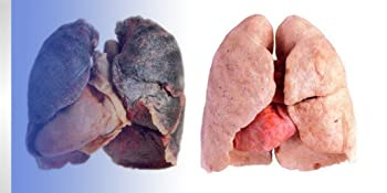 smokers lungs healing