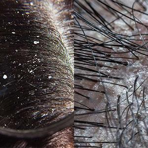 curly brush detangler
