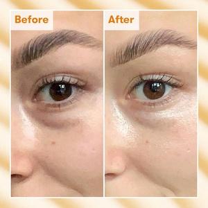 eye cream vegan dark spot dark eyebags circles lighten