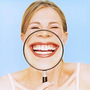 Kit di sbiancamento dentale