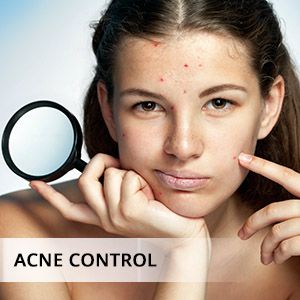 clove essential oil for acne, breakouts, pimples, scars, infections