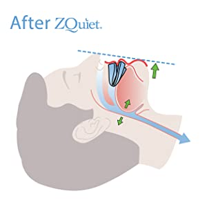 ZQuiet relieves snoring symptoms by moving the lower jaw forward during sleep.