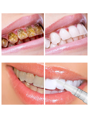 whitening tooth