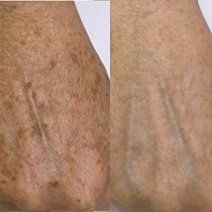before and after age spots on hand