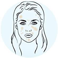 Why is My Oily Skin? What Causes Skin Oily