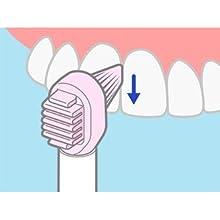 歯間用ラバー