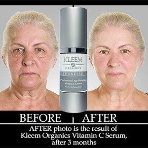Amazon new improved vitamin c serum for face with 25 the power of our vitamin c serum solutioingenieria Images