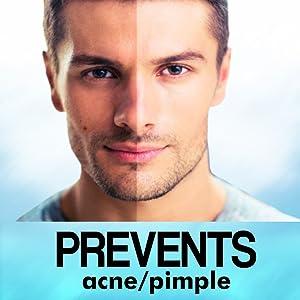 prevents acne insta glow