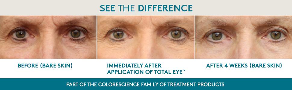 Total Eye, Colorescience, Eye Treatment