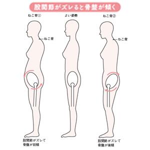 股関節3.jpg