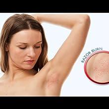 razor burn razor bumps ingrown hairs