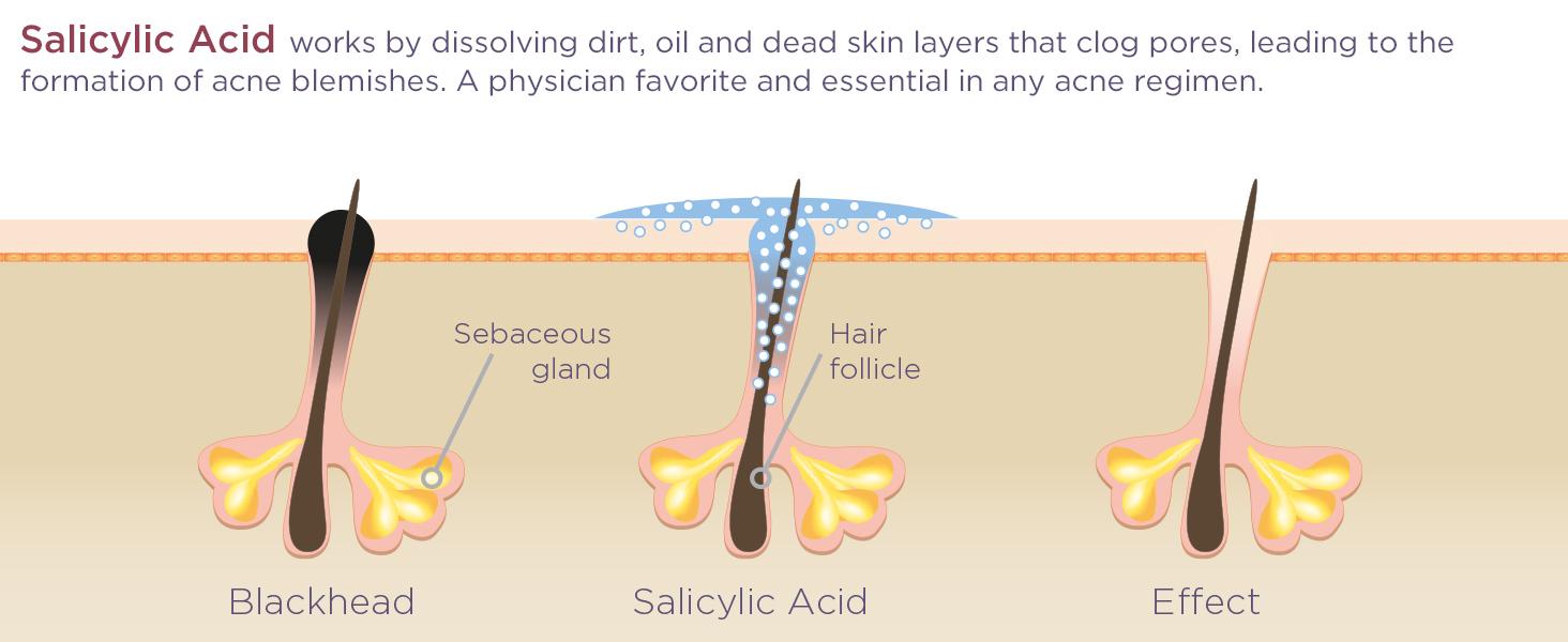Glytone Acne Therapy Salicylic Acid