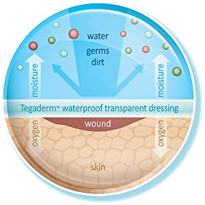 Illustration of the skin being protected by Tegaderm Dressings and repelling water, germs and dirt