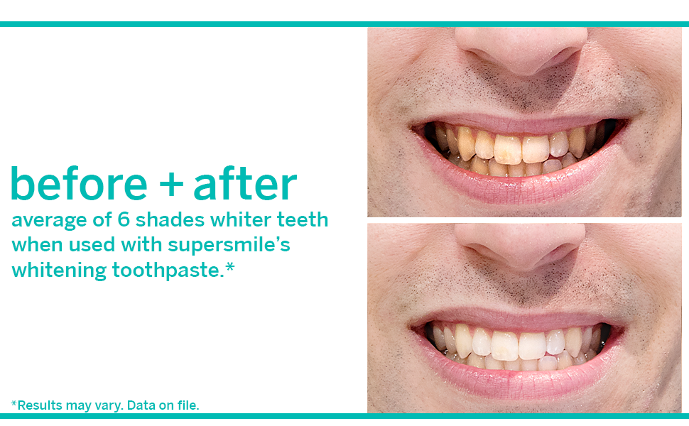 before and after supersmile whitening system