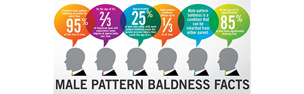 male pattern baldness facts infographic