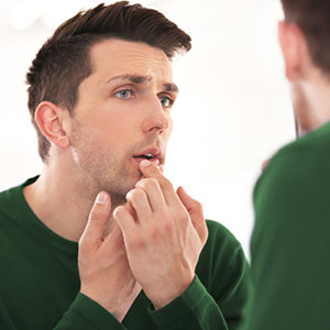 Nature's Own; Nature's Own Cold Sore Relief; Cold Sore relief; Cold sore; Cold Sore removal;