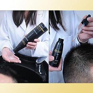 dht blocker, anti-dht shampoo, saw palmetto, natural dht, natural hair loss solution,