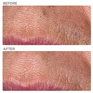 upper lip hair removal reduction permanent comparison ilight ipl