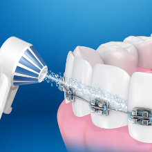 What if I have braces or implants?