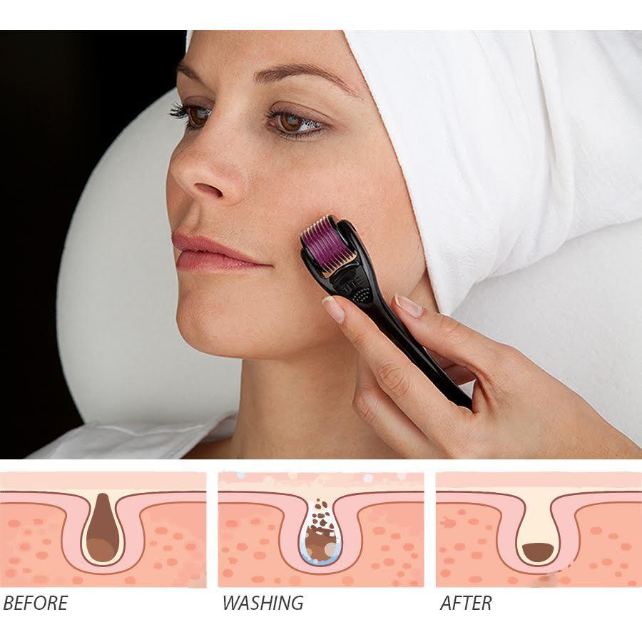skin roller for face