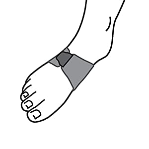 illustration of support fitting on right foot arch