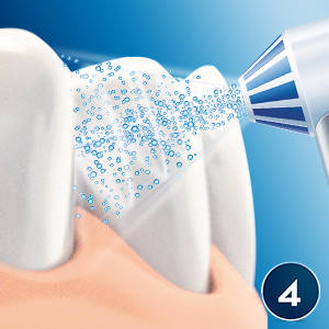 Cómo utilizar el irrigador Oral-B Oxyjet
