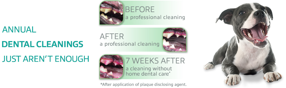 Annual Dental Cleanings Just Aren't Enough.
