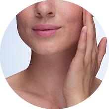 gel nettoyant visage homme nettoyant visage peau grasse nettoyant visage acné peau grasse