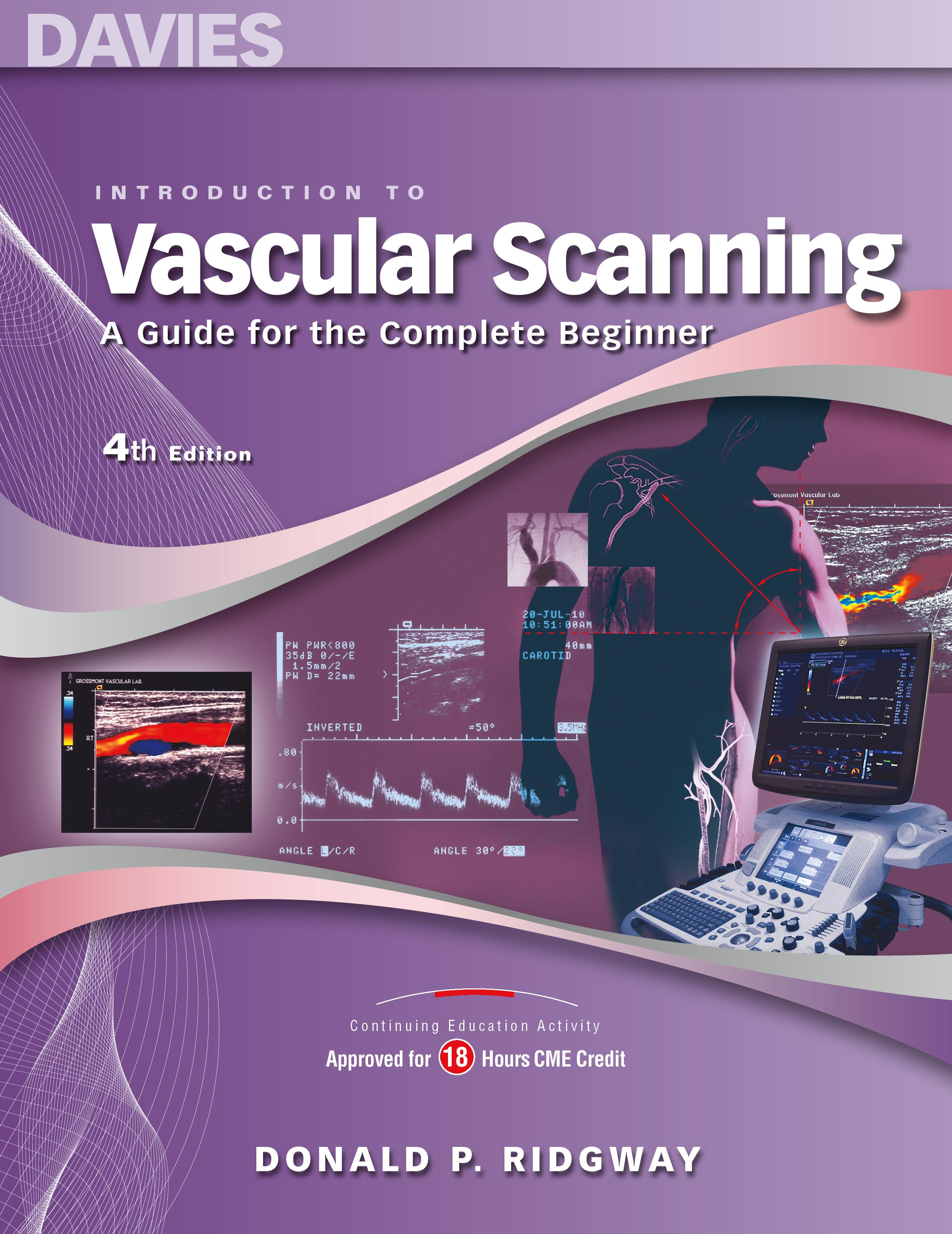 vascular ultrasound, vascular sonography, vascular scanning