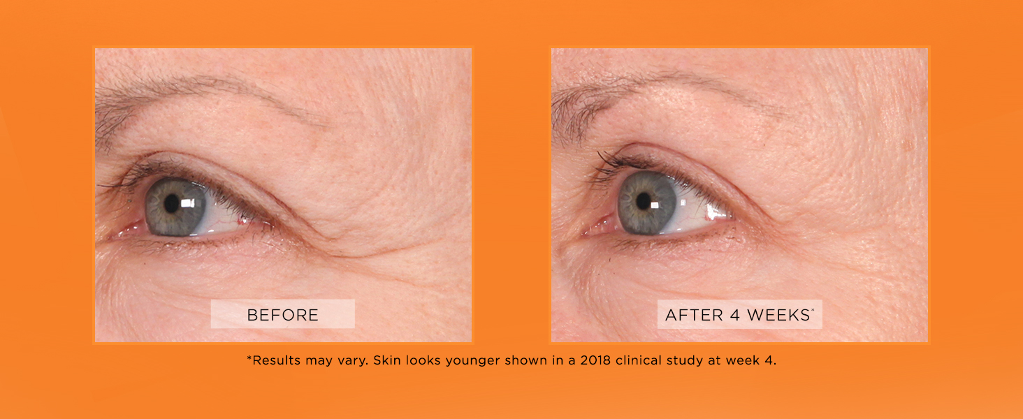 826cf2ff8dd face moisturizer moisturizer for face anti aging face cream moisturizer  facial moisturizer serum