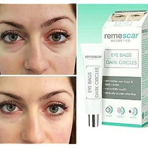 remescar eye bags
