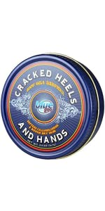blue goo, cracked heels relief, dry hands salve, blue goo for dry skin, deep moisturizing, hydrating