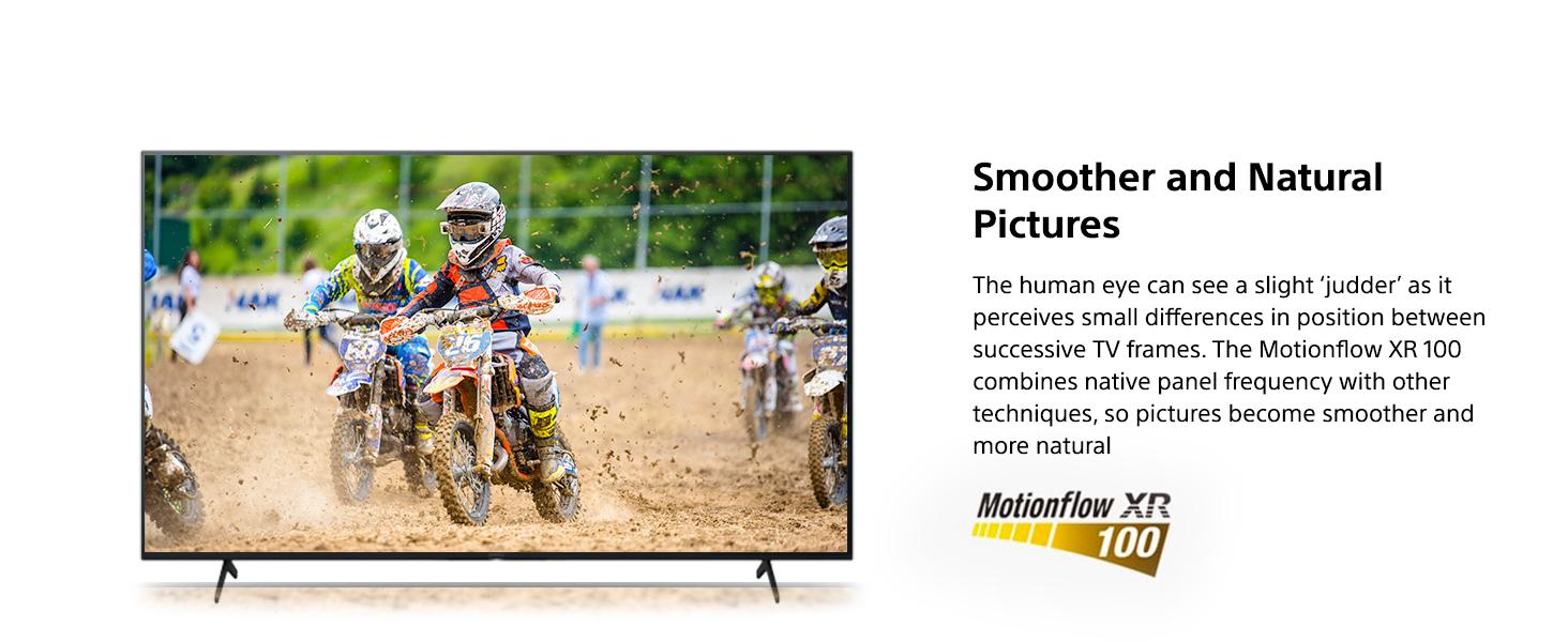 Motionflow XR 100