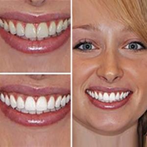 Amazon Com Glo Brilliant Deluxe Teeth Whitening Device